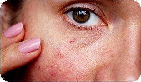 Nierównomierny koloryt skóry